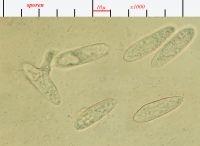 De sporen van Entomophthora zijn voorzien van een kleverige slijmlaag (foto: Paul Wouters en Marianne Horemans)